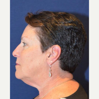 55-64 year old woman treated with Facelift before 3339834