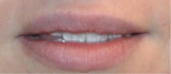 Juvederm for Lip Augmentation after 3808793