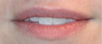 Juvederm for Lip Augmentation before 3808793
