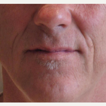 45-54 year old man treated with Juvederm