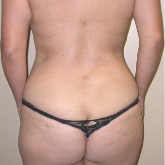 Mommy Makeover: Tummy Tuck, Liposuction Trunk, Trans-axillary Breast augmentation 655646