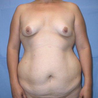 Mommy Makeover: Tummy Tuck, Liposuction Trunk, Trans-axillary Breast augmentation before 655646