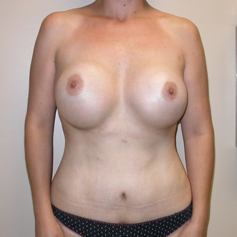 Mommy Makeover: Tummy Tuck, Liposuction Trunk, Trans-axillary Breast augmentation after 655646