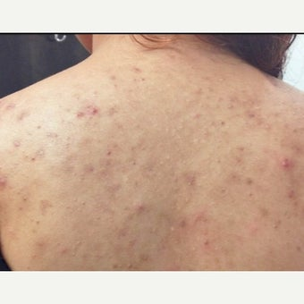 18-24 year old woman treated with Accutane before 2019694