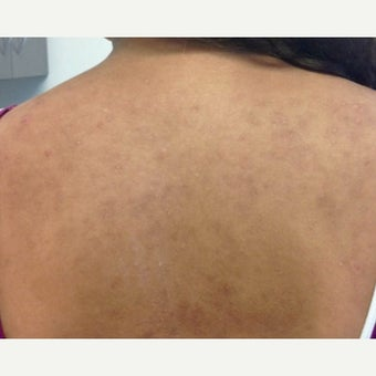 18-24 year old woman treated with Accutane after 2019694