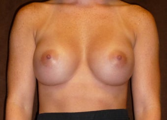 Breast Augmentation after 587757