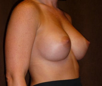 Breast Augmentation 587757