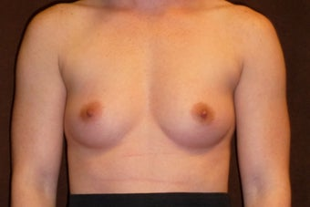Breast Augmentation before 587757