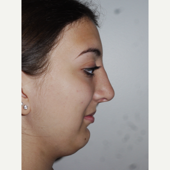 Young woman treated with Septoplasty and Rhinoplasty after 3001849