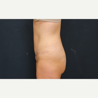 25-34 year old woman treated with Tummy Tuck after 3344898