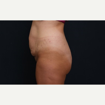 25-34 year old woman treated with Tummy Tuck before 3344898