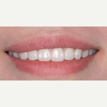 25-34 year old woman treated with lip lowering after 2465233