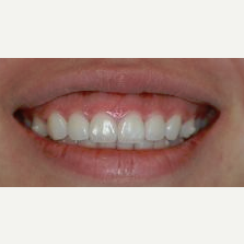 25-34 year old woman treated with lip lowering before 2465233