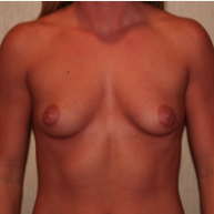 25-34 year old woman treated with Breast Augmentation before 3299847