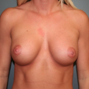 25-34 year old woman treated with Breast Augmentation after 3299847