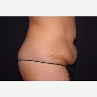 35-44 year old woman treated with Tummy Tuck before 3123674