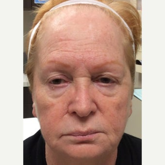 65-74 year old woman treated with ProFractional Laser before 2270332