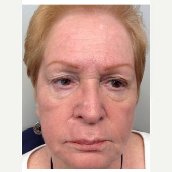 65-74 year old woman treated with ProFractional Laser after 2270332