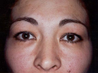 A 32 Year Old Female Underwent Eyelid Surgery
