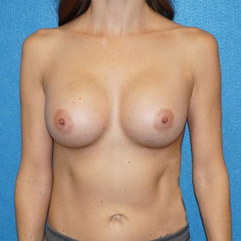 37 year old woman treated with Breast Augmentation after 2488294