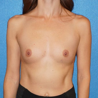 37 year old woman treated with Breast Augmentation before 2488294