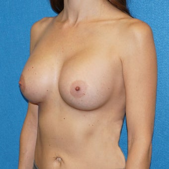 37 year old woman treated with Breast Augmentation 2488294