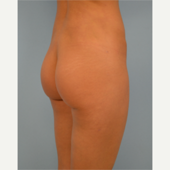 31 year old woman treated with Brazilian Butt Lift after 3432354
