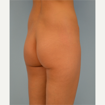 31 year old woman treated with Brazilian Butt Lift before 3432354