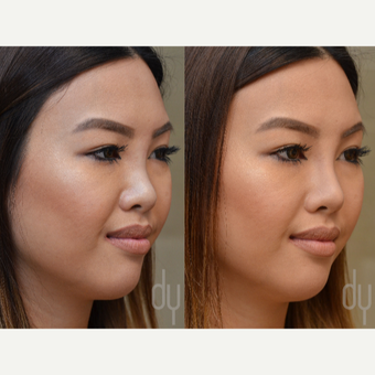 Non Surgical Rhinoplasty before 3322520