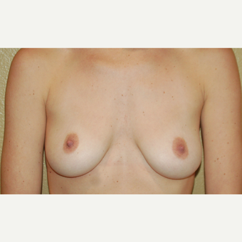 25-34 year old woman treated with Breast Lift with Implants before 3018901