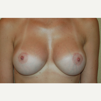 25-34 year old woman treated with Breast Lift with Implants after 3018901