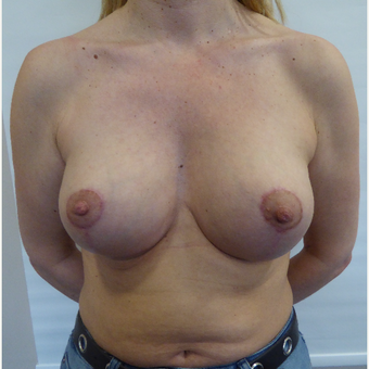 35-44 year old woman treated with Breast Lift after 3428278