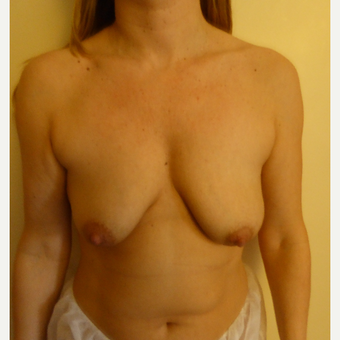 35-44 year old woman treated with Breast Lift before 3428278