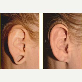 18-24 year old woman treated with Ear Lobe Surgery before 3749838