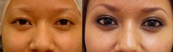 Asian eyelid surgery for asymmetry before 966098