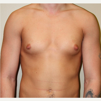 25-34 year old man treated with Male Breast Reduction before 3215364