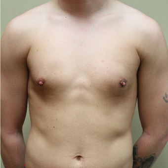 25-34 year old man treated with Male Breast Reduction after 3215364