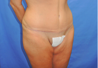 45-54 year old woman treated with Tummy Tuck 2459794