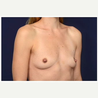 25-34 year old woman treated with Mentor Breast Implants before 3383432