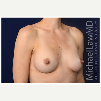 25-34 year old woman treated with Mentor Breast Implants after 3383432