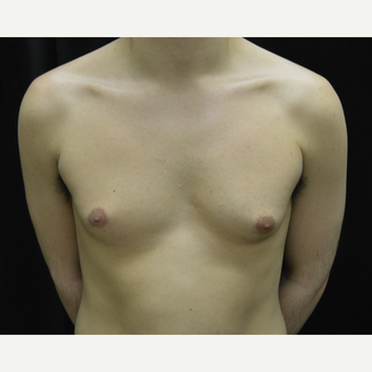 25-34 year old man treated with Male Breast Reduction before 3423924