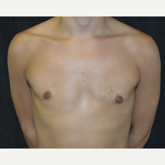 25-34 year old man treated with Male Breast Reduction after 3423924
