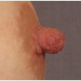 25-34 year old woman treated with Nipple Reduction Surgery with Implant Exchange