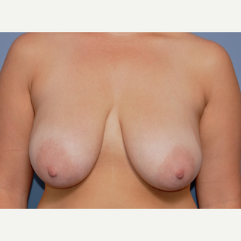 25-34 year old woman treated with Breast Lift before 3030502