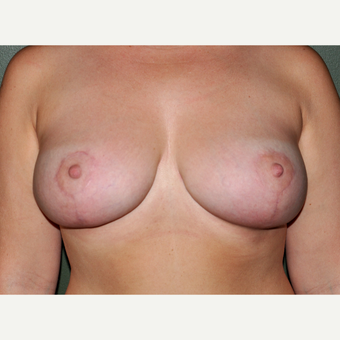 25-34 year old woman treated with Breast Lift after 3030502