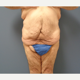 45-54 year old man treated with Body Lift before 3628590
