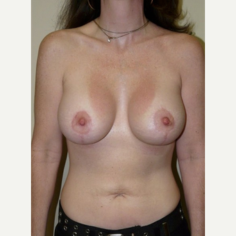 Woman treated with Breast Lift with Implants after 1773463