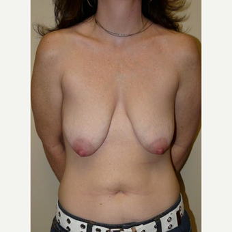 Woman treated with Breast Lift with Implants before 1773463