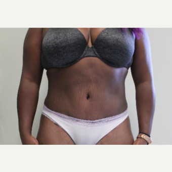 35-44 year old woman treated with Tummy Tuck after 3460132