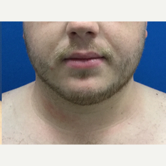 25-34 year old man treated with Laser Liposuction after 3496299